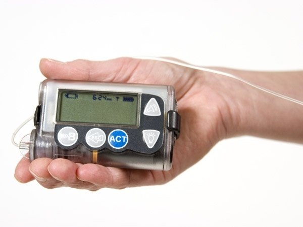 Diabetes Treatment: Pros and Cons of Insulin Pumps ...